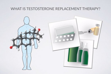 Testosterone Replacement Therapy Infographic
