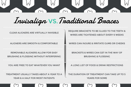 THE ADVANTAGES OF INVISALIGN ALIGNERS  Infographic