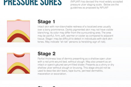 The Dirty Secret About Pressure Sores Infographic