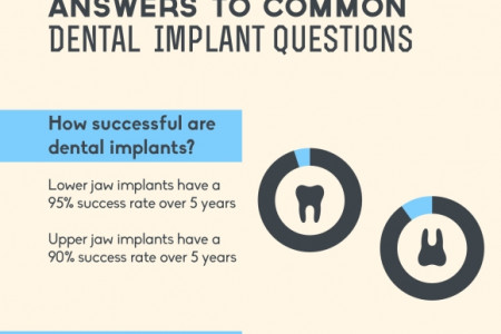 The Patient's Guide to Dental Implants  Infographic
