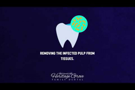 The Process of Root Canal Plainfield IL Dentists Follow Infographic