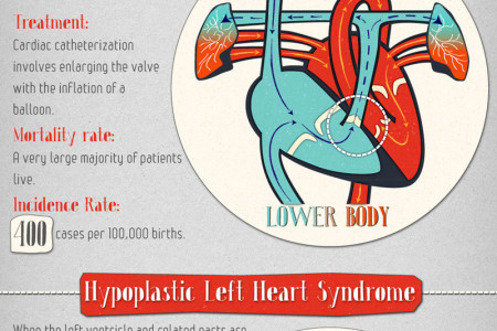 The surprisingly common world of Heart Defects Infographic
