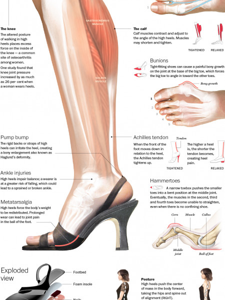 The True Effect of High Heels Infographic