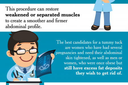The Tummy Tuck Procedure Infographic