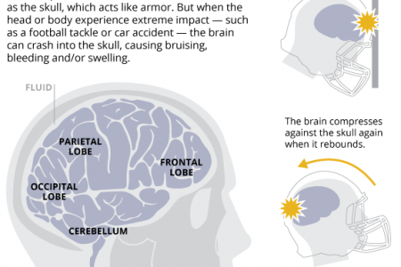 This Is Your Brain On A Concussion Infographic