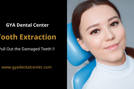 Tooth Extraction - GYA Dental Center Infographic