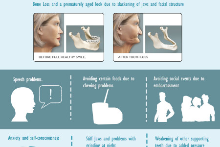 Tooth Loss, Bone Loss and Dental Implants Infographic