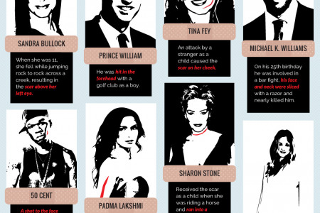 Top  Scars: Celebrity Edition Infographic