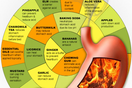 Top 15 Best Heartburn Remedies Infographic Infographic