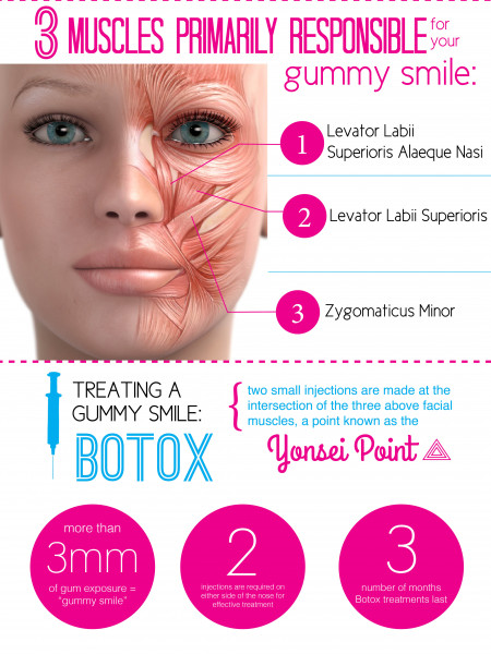 Treat a Gummy Smile with Botox Infographic