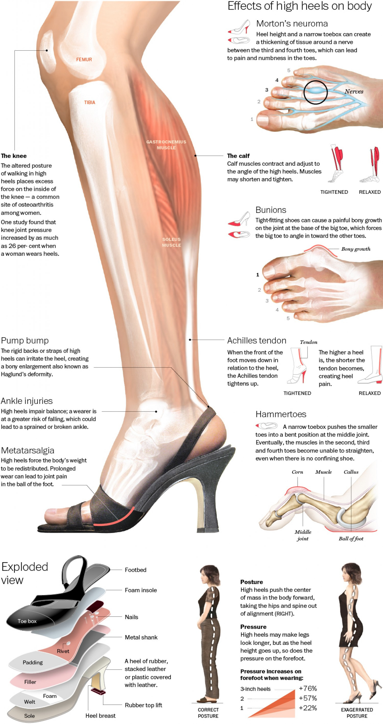 True Effect High Heels Infographic
