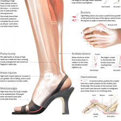 effects on wearing high heels Women love wearing high heels and men love seeing women wear them, that`s a proven fact i`m sure that some of you might not agree with me on this, but the latest.