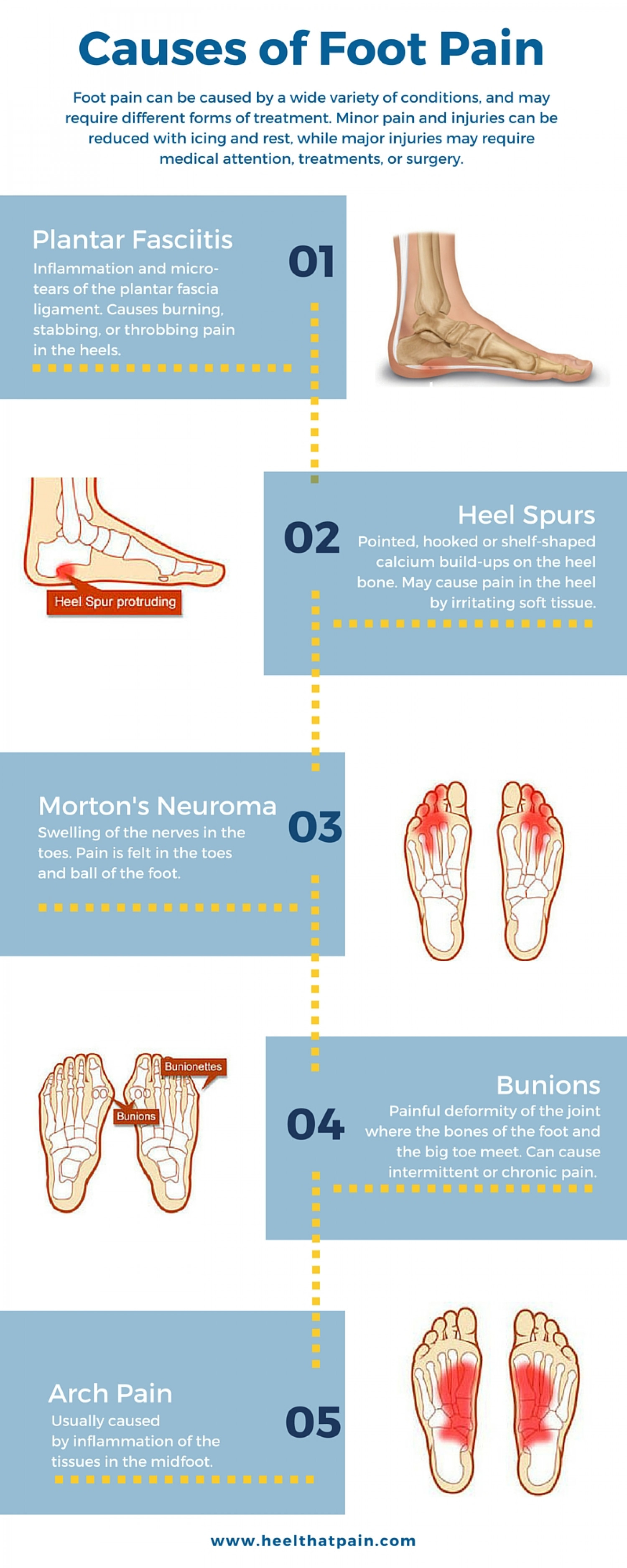 Types of Foot and Heel Pain Infographic