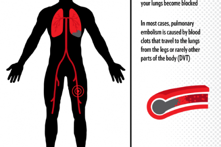 Understanding Anticoagulant Therapy  Infographic