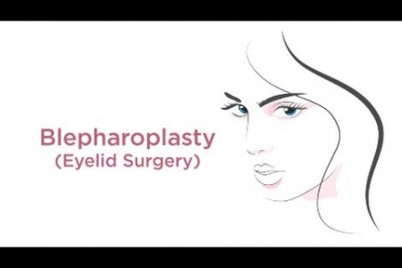Upper & Lower Blepharoplasty Eyelid Surgery Houston - Memorial Plastic Surgery Infographic