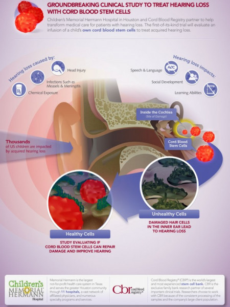 Use of Cord Blood Stem Cells To Treat Hearing Loss Infographic
