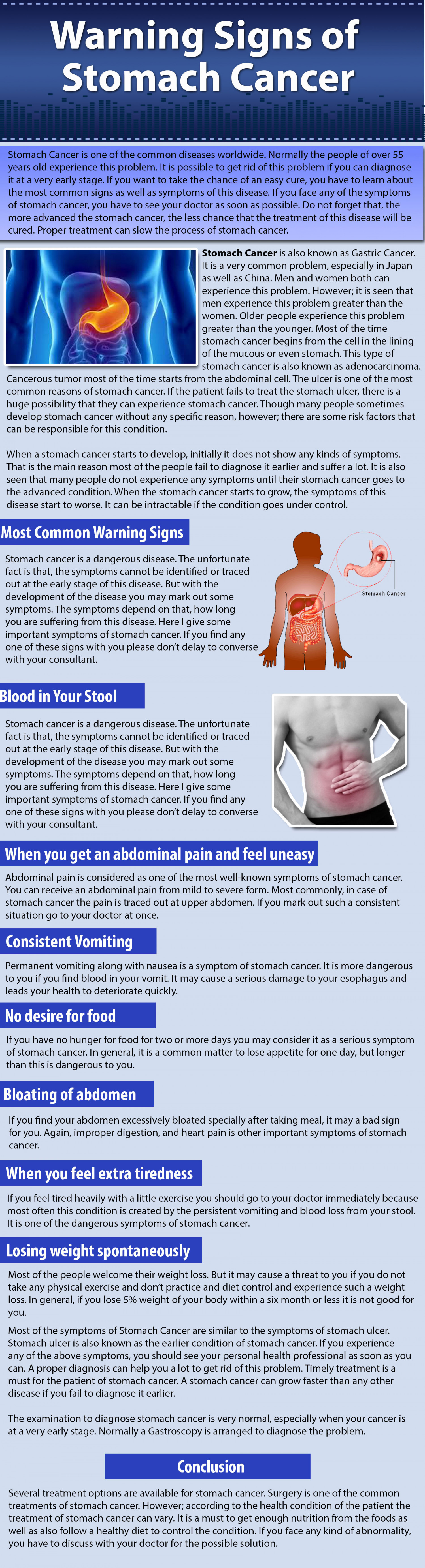 Warning Signs of Stomach Cancer Infographic