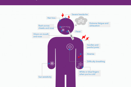 What are Symptoms of Lupus? Infographic
