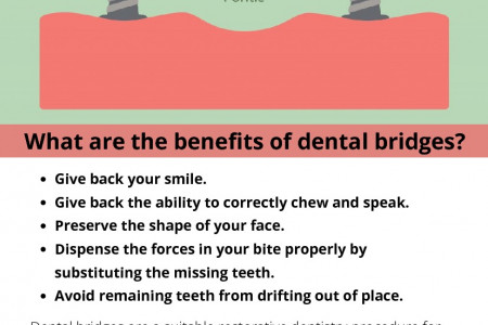 What are the benefits of dental bridges? Infographic
