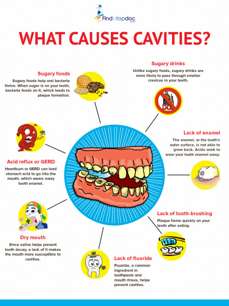 What Causes Cavities? Infographic