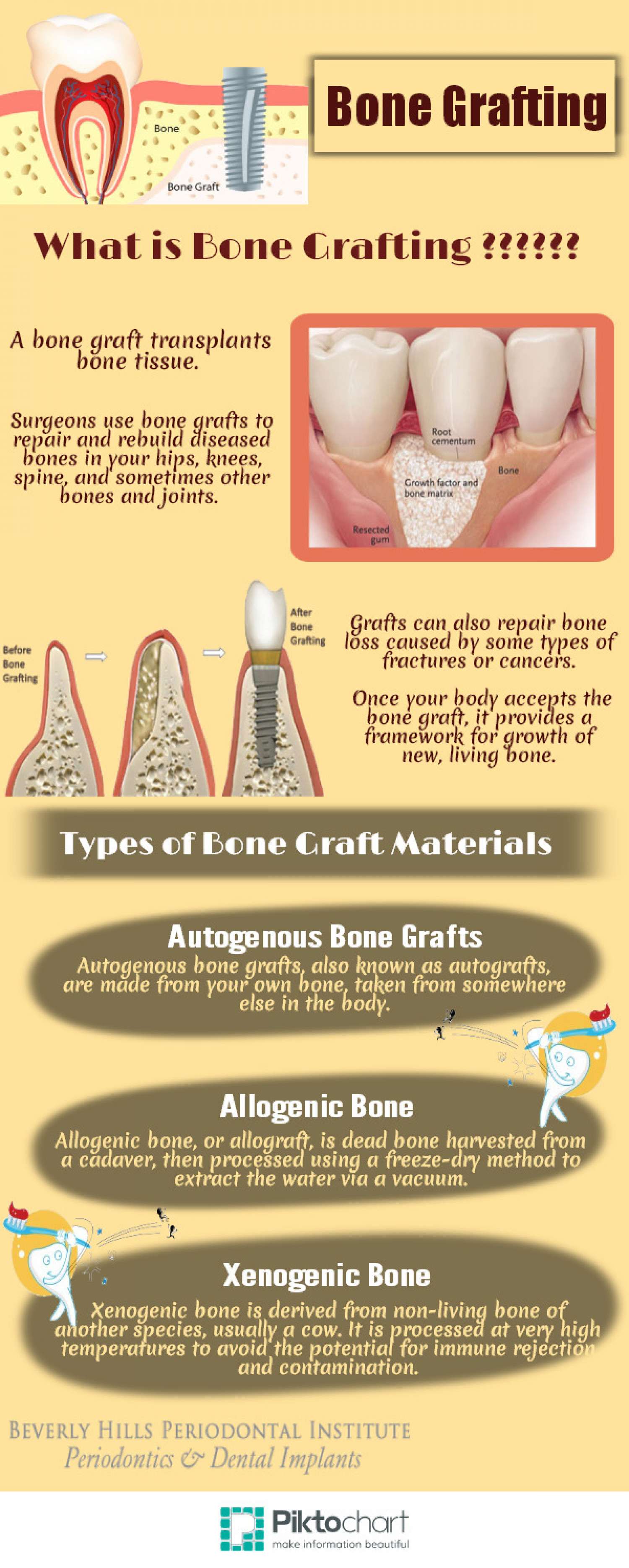 What is Bone Grafting ??? Infographic