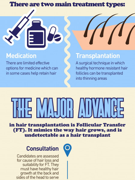 What Is Follicular Transfer? Infographic