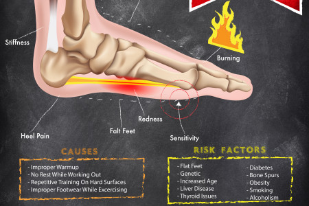 WHAT IS PLANTAR FACIITIS Infographic
