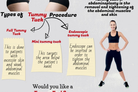What is Tummy Tuck? Infographic