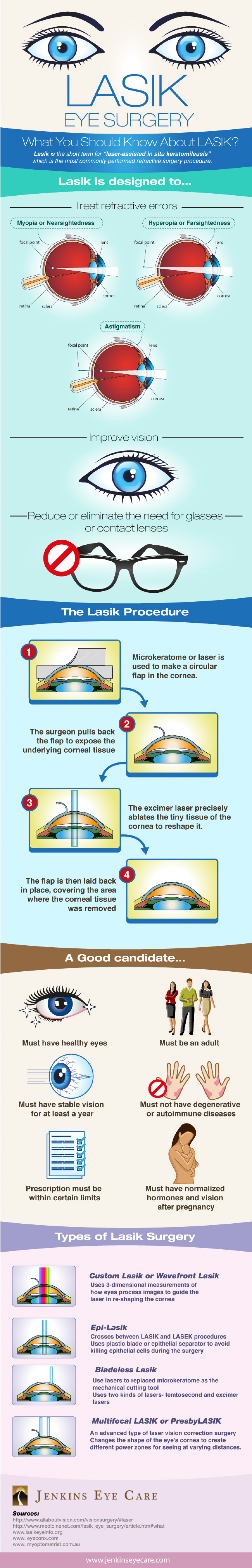What you Should Know about Lasik Infographic