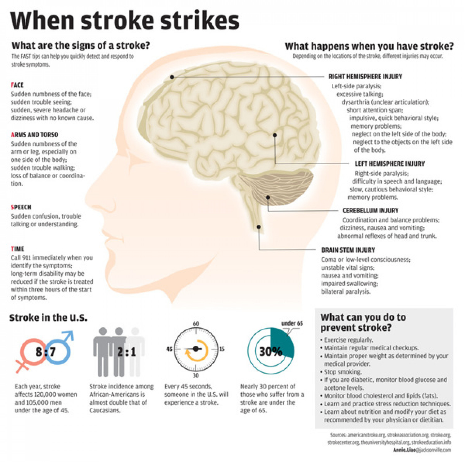 When Stroke Strikes Infographic