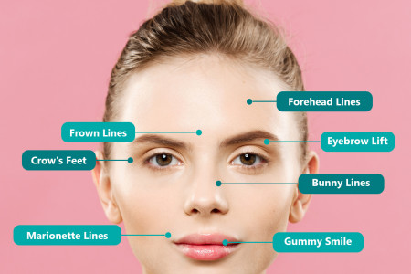Where Botox Can Be Injected? Infographic