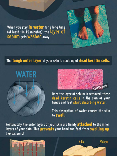 Why do Fingers Wrinkle in Water? Infographic
