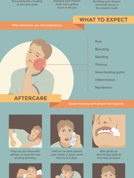 Wisdom Tooth Extraction: The Ultimate Survival Guide Infographic
