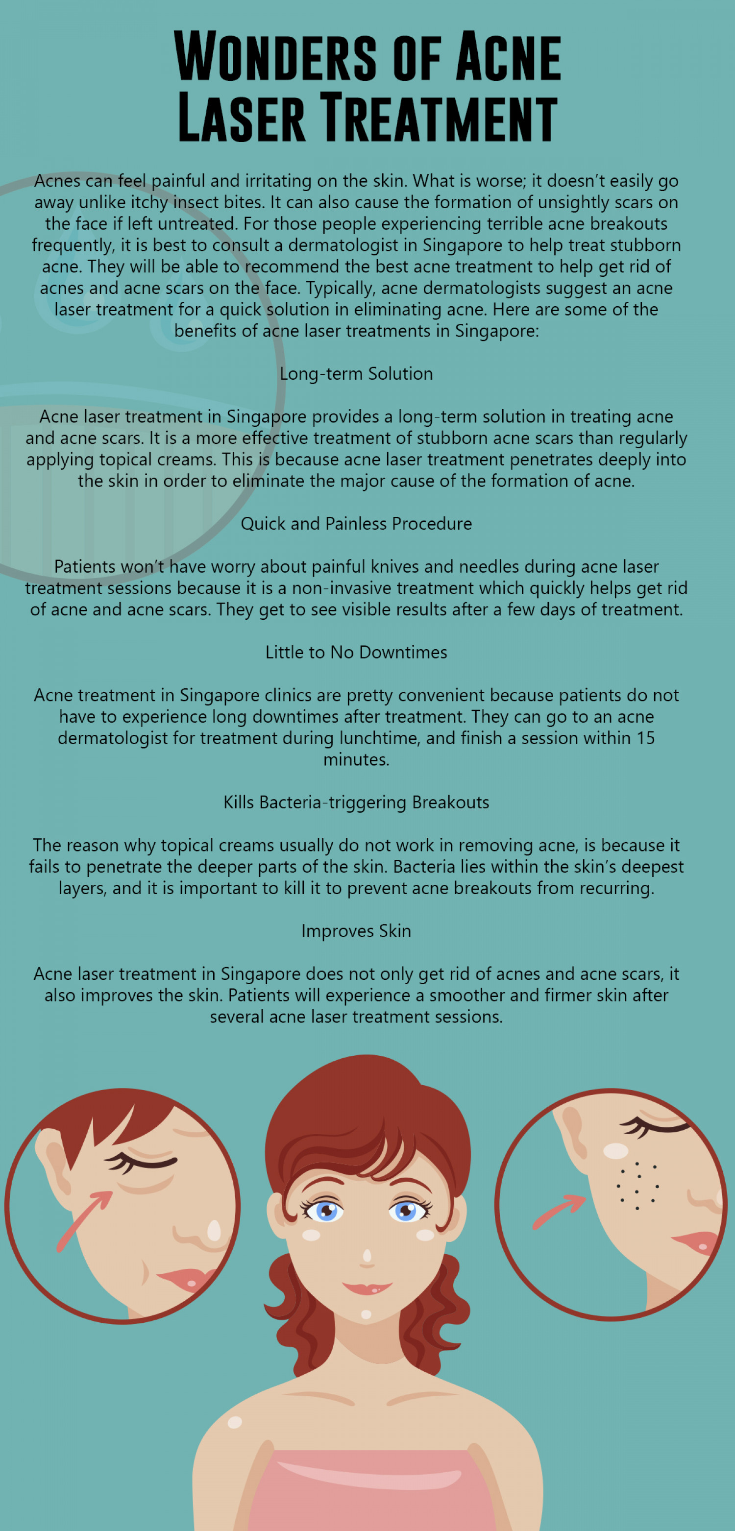 Wonders of Acne Laser Treatment Infographic