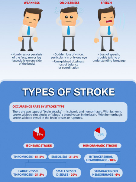World Stroke Day: Stroke Across America Infographic