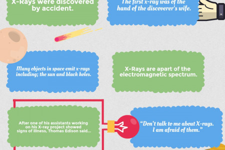 X-Ray Facts Infographic