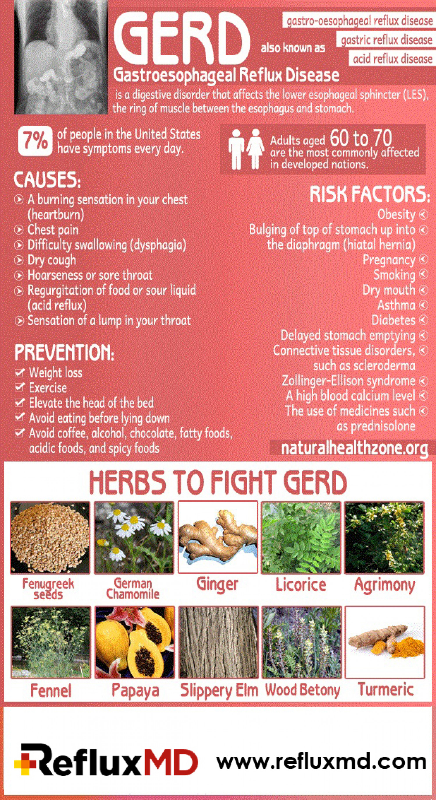 12 Natural Acid Reflux Remedies Infographic