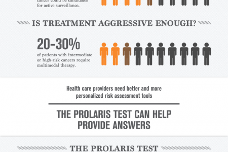 30,000 Men Die Every Year From Prostate Cancer Infographic