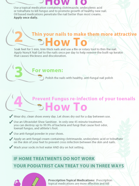 4 Steps to Treat Fungal Nails at Home Infographic