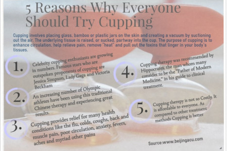 5 reasons why everyone should try cupping therepy Infographic