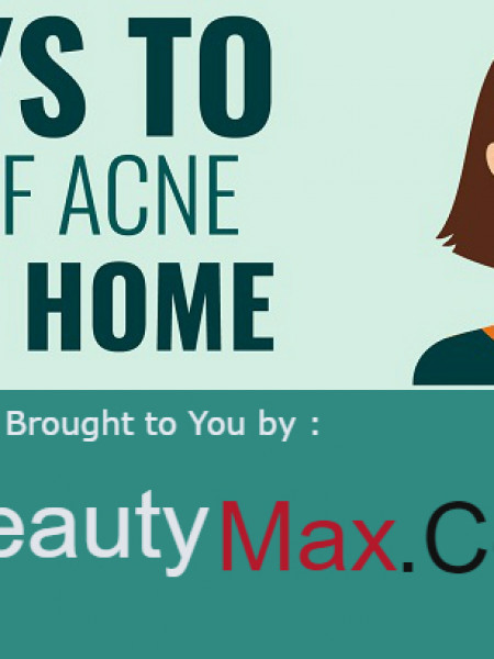 8 ways to get rid of Acne Fast at home Infographic