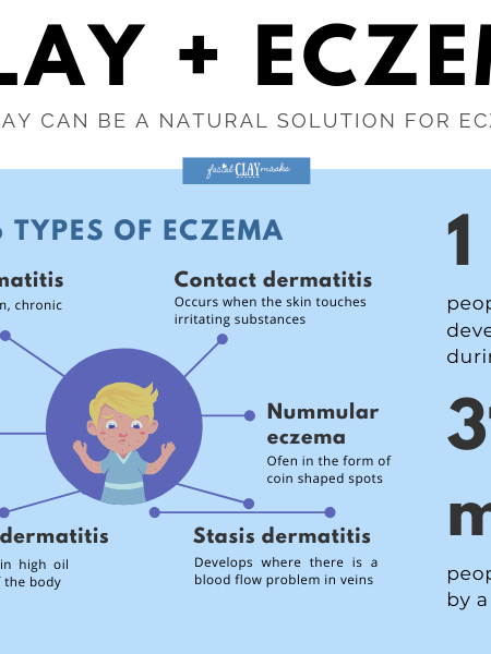 Clay + Eczema: Stats about Eczema and Types of Clay for Eczema Infographic