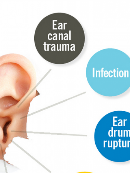 Do's and Don'ts for Dealing with Earwax Buildup Infographic