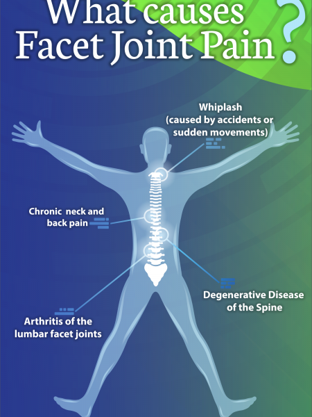 Facet Joint Pain Infographic