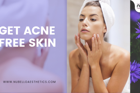 Get Clean and Clear Skin With Best Acne Treatment In Mumbai at Nubello Clinic Infographic