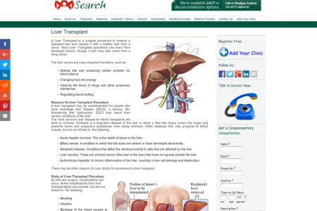 Liver Disease  Infographic