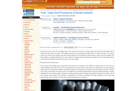 Truth, Types And Procedures of Dental Implants Infographic