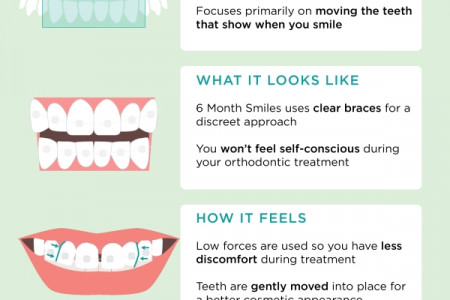 A Better Smile in 6 Months Infographic