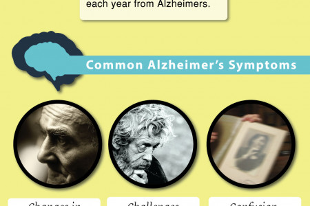 A Comprehensive Look at Alzheimer's: An Infographic Infographic