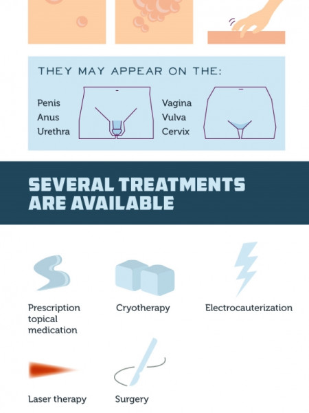 A Patient's Guide to Genital Warts  Infographic